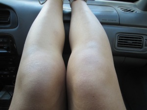 Ashy Knees